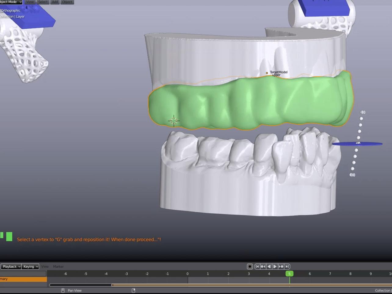 El nuevo Splint designer de Blender for Dental.