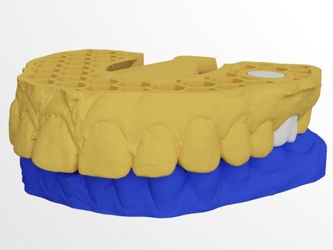 Blender for Dental