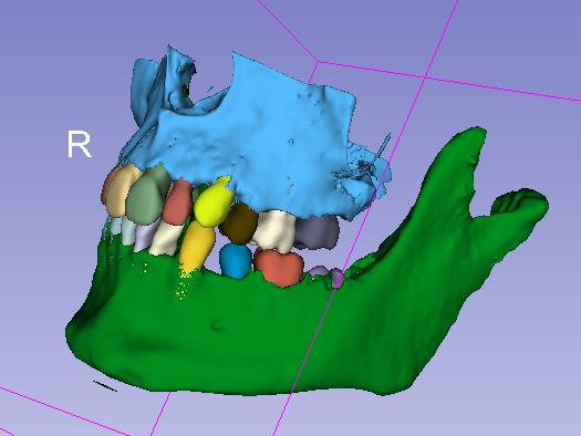 3D slicer odontología