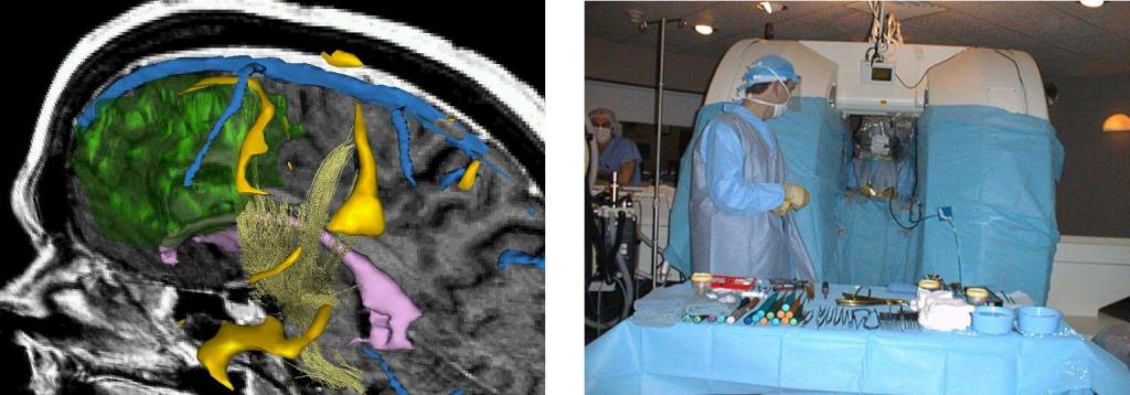 Cirugía guiada utilizando 3D Slicer