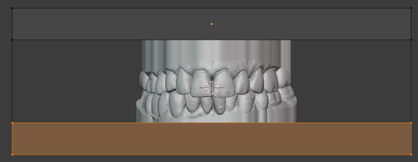 Como hacer modelos dentales huecos