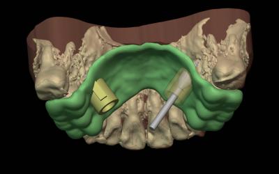 Guía digital para la colocación de mini-implantes en ortodoncia.