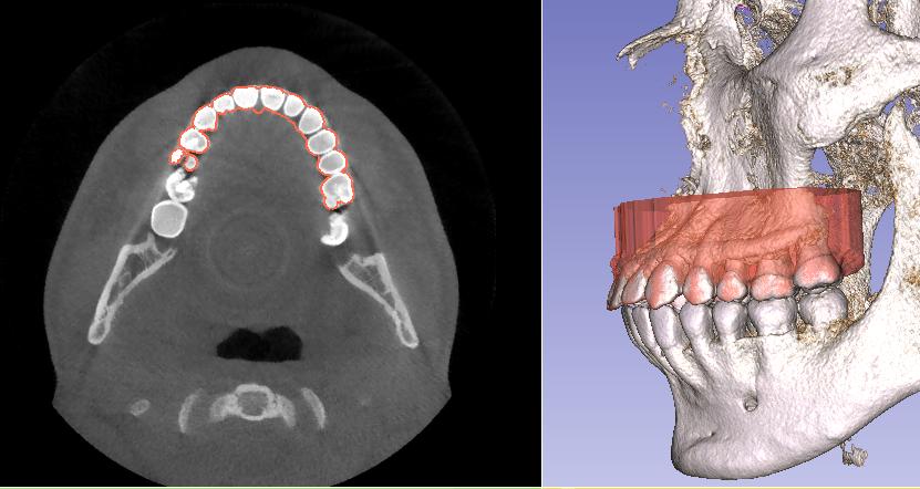 Alineación de modelo digital y tomografía.