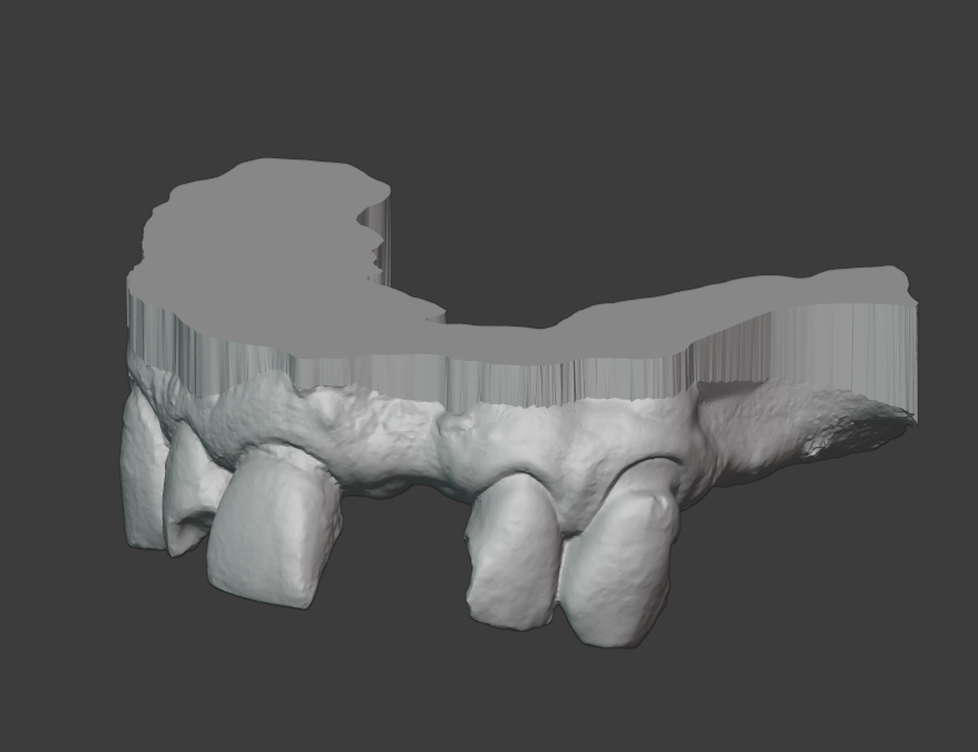 Como hacer bases para modelos digitales (impresion dental 3D)