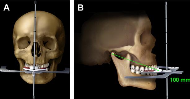 Arco facial de kois utilizado en el montaje en articulador digital