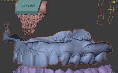Montaje en Articulador Digital con Blender for Dental con arco facial