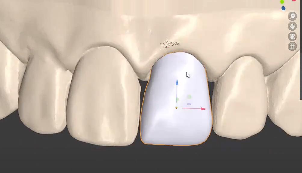 Coorna provisional con Blender for Dental.