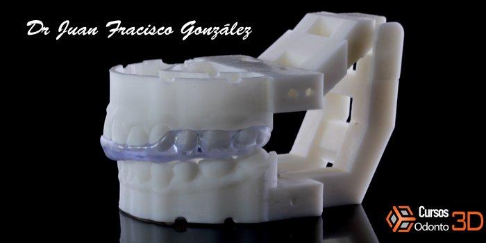 Guardas oclusales impresa en 3D