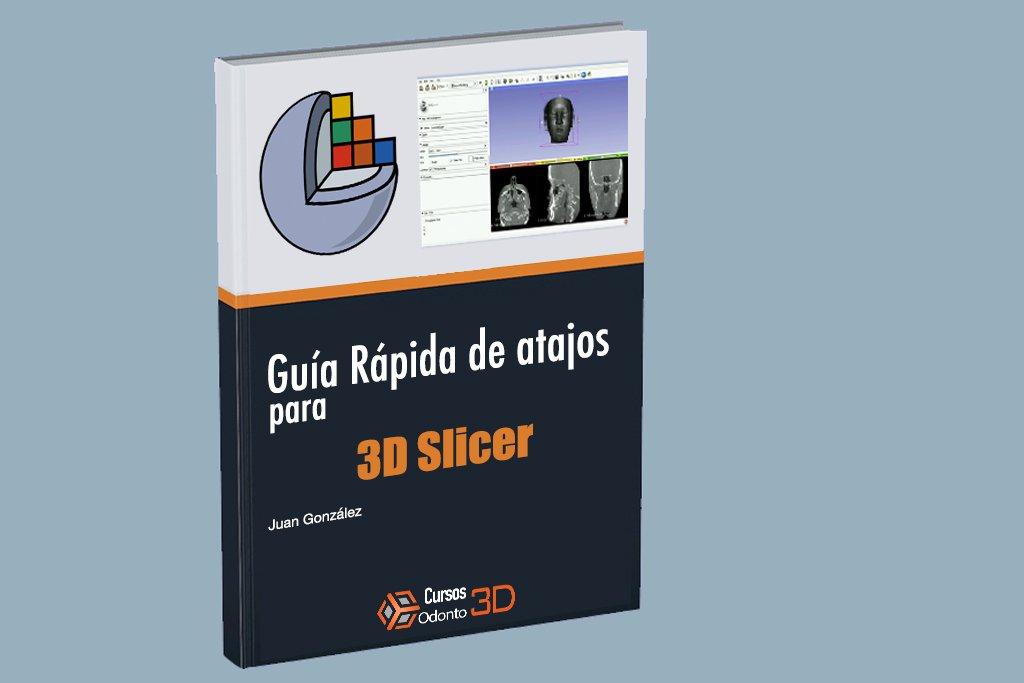 Atajos de teclado 3D Slicer