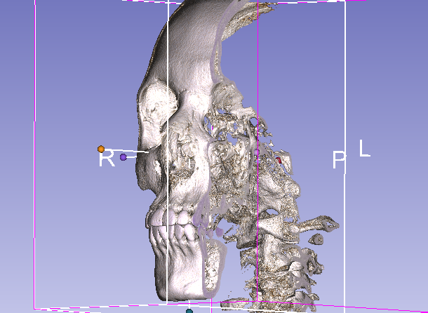 Reconstrucción 3D en tomografía – Volume Rendering con 3D Slicer (Tutorial en español. Parte 2)