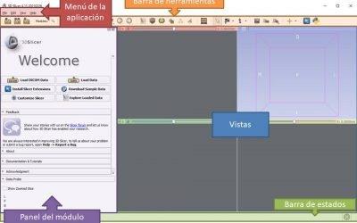3D Slicer Tutorial en español. Parte 1