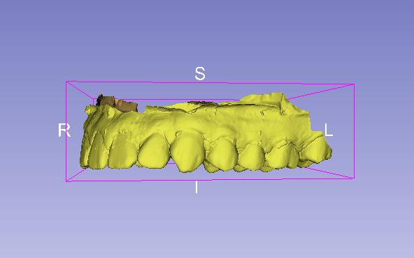 Trabajar con modelos STL en 3D Slicer. Escáner + tomografía